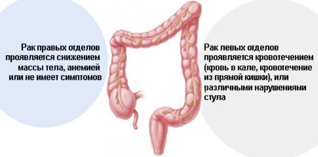 симптомы онкологии кишечника