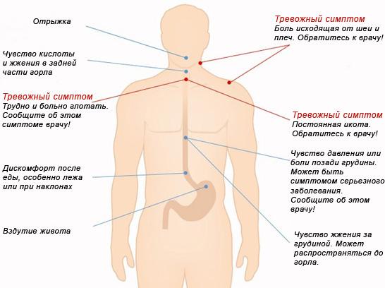 симптомы, сопровождающие изжогу