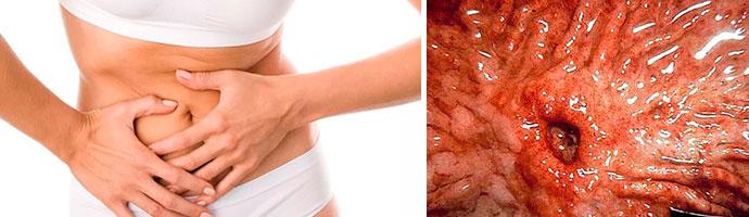симптомы язвенного заболевания