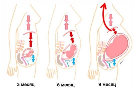 смещение внутренних органов у беременных