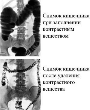 снимок кишечника с контрастом и без