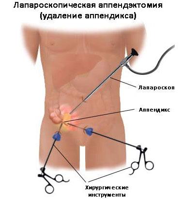 схема удаления аппендицита