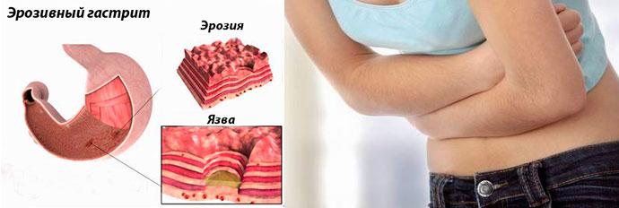 вид эрозивного заболевания желудка