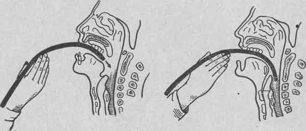 техника введения зонда в желудок