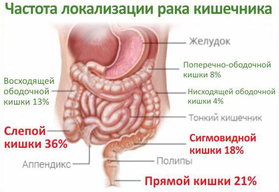 частота локализации рака