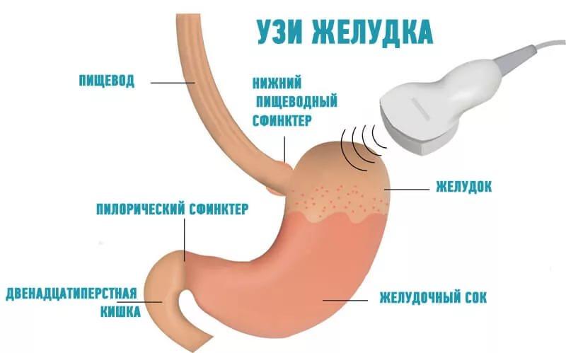 что показывает исследование желудка