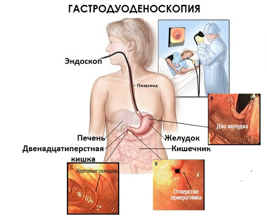 что показывает гастродуоденоскопия