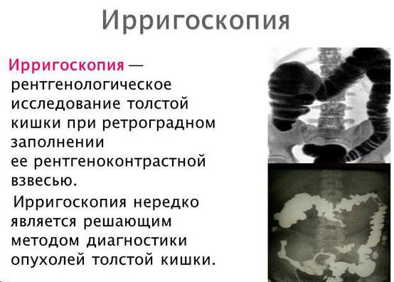 что такое ирригоскопия