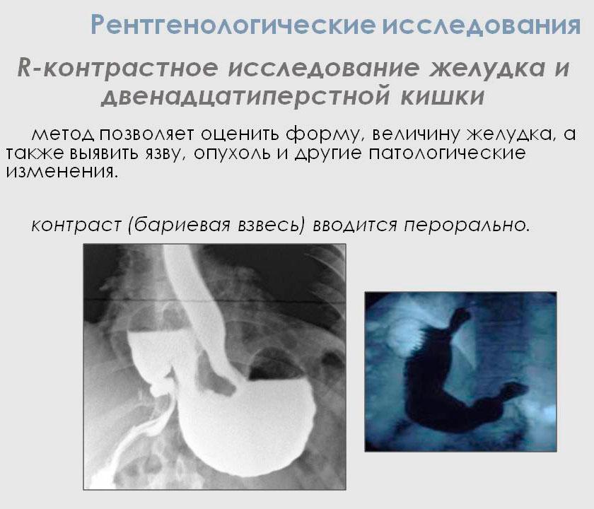 что такое рентгенологическое исследование