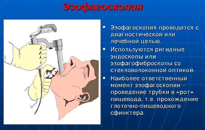 процедура эзофагоскопия