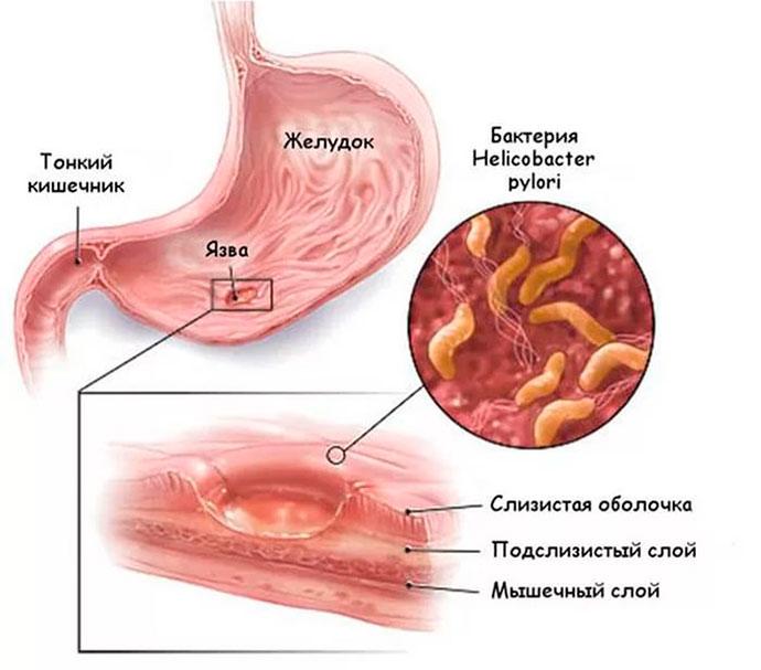 язва возникает из-за бактерии Helicobacter pylori