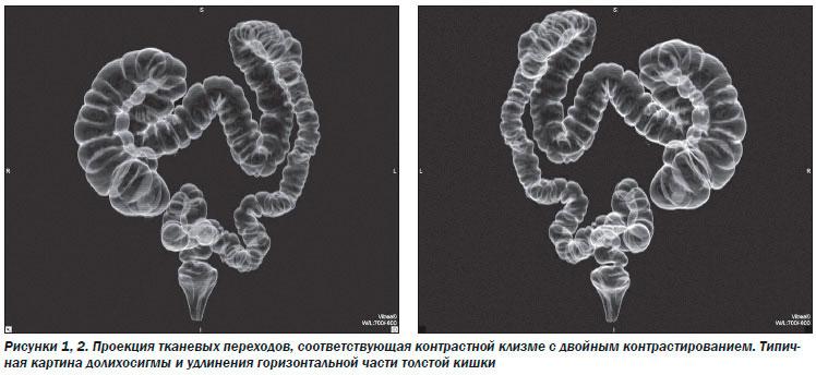 3D модель кишечника