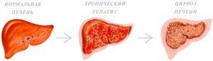 Хронический гепатит в сроки лечения