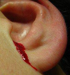 Что делать, если течёт кровь из уха?.