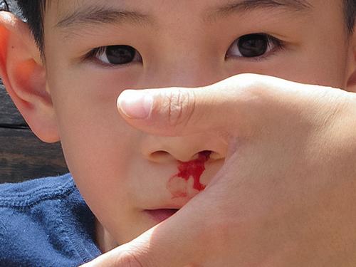 Что делать, если у ребенка носовое кровотечение?.