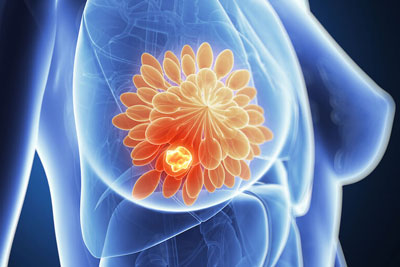 Фиброзно кистозная мастопатия симптомы лечение