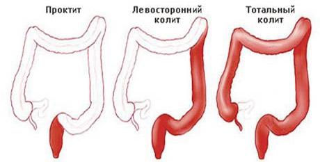 виды спазмов в кишечнике