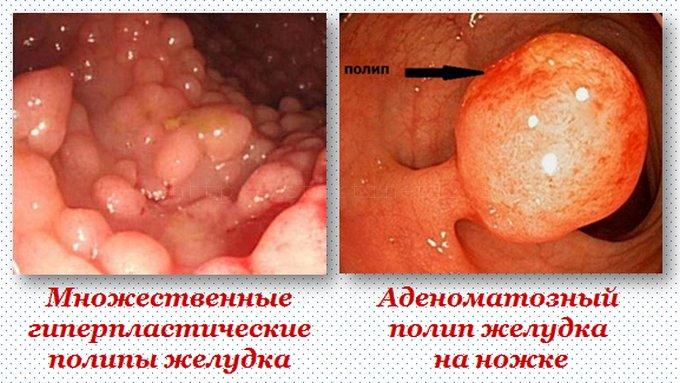 Гиперпластические и аденоматозные полипы