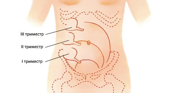 аппендикс у беременных