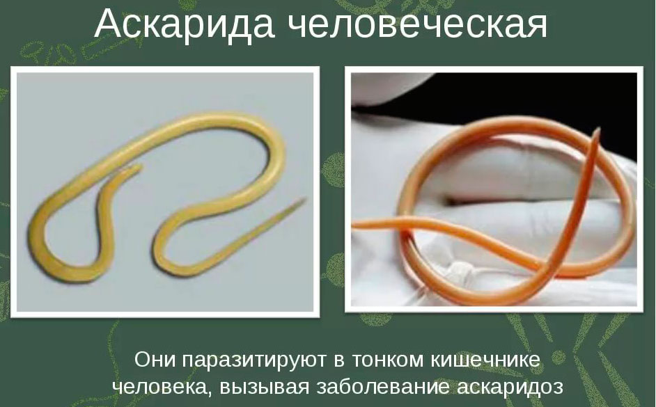 глисты аскариды