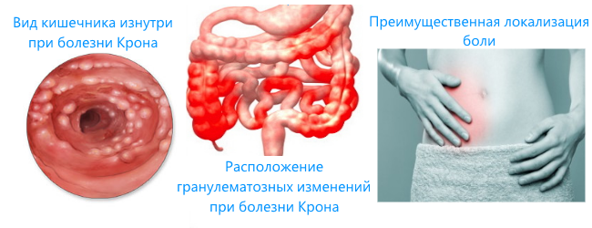 кишечник при болезни Крона