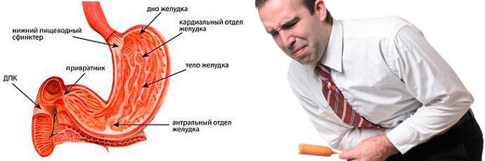 боль при антральном поверхностном типе гастрита
