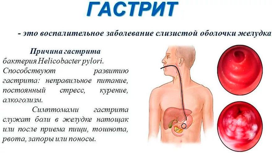 болевые ощущения из-за гастрита
