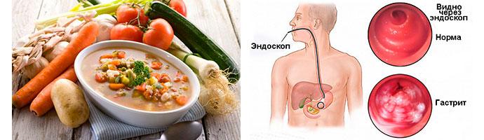 питание для больных гастритом