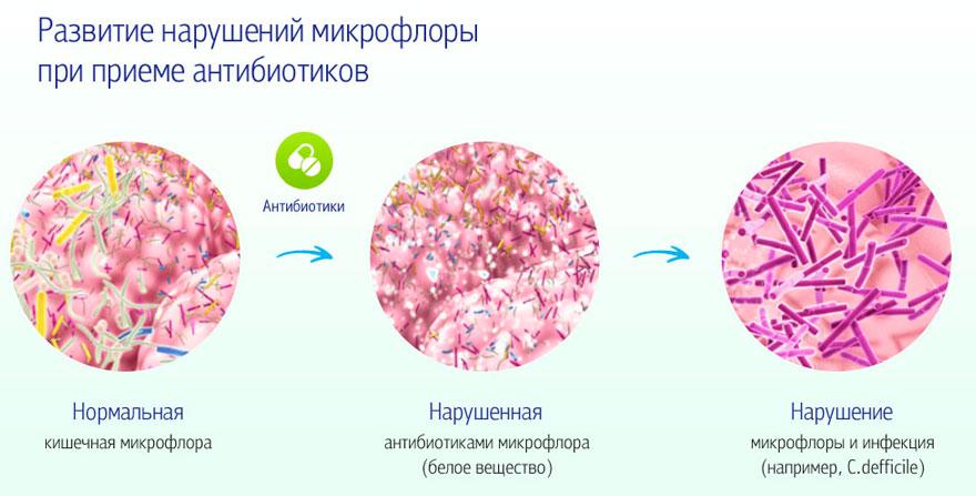 развитие нарушений микрофлоры при приеме антибиотиков