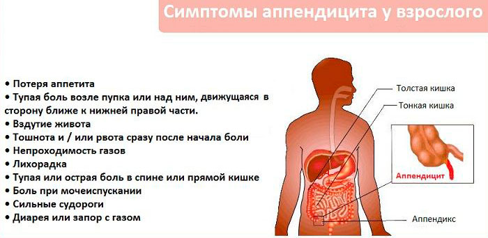 симптомы воспаления аппендицита