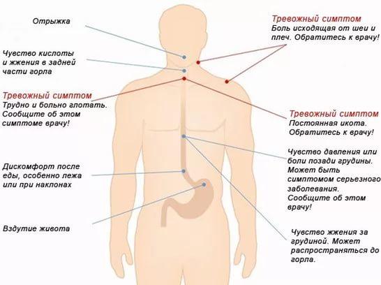 симптомы дискомфорта в желудке