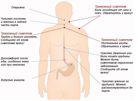 симптомы, сопровождающие жжение в желудке