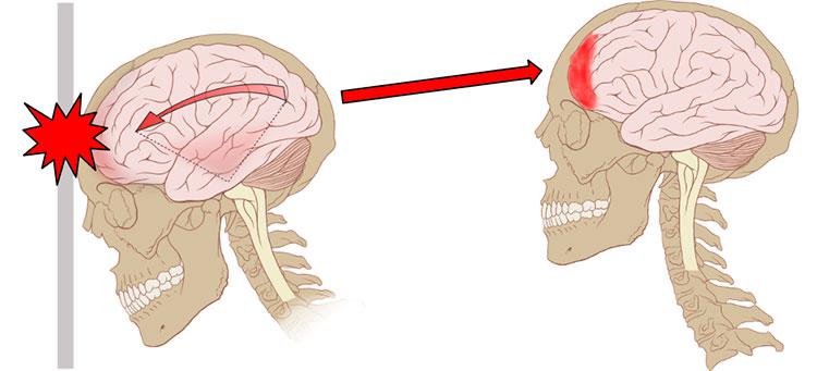 Диагностика сотрясения мозга