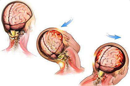 Диагностика ушиба мозга