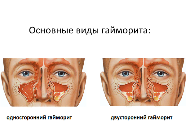 Как лечить головную боль при гайморите