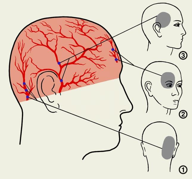 Лечение пульсирующей боли в голове